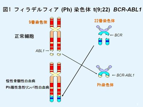 図1 フィラデルフィア(Ph)染色体