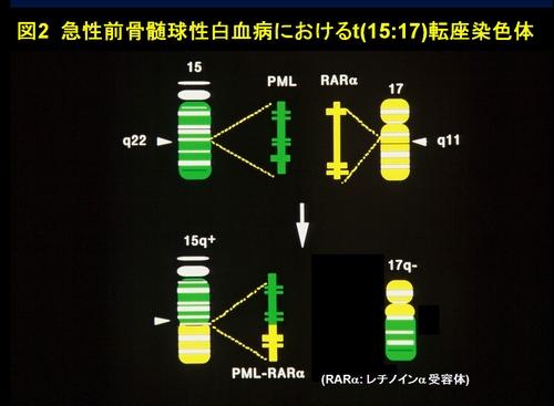 図2 急性前骨髄球性白血病におけるt(15:17)転座染色体