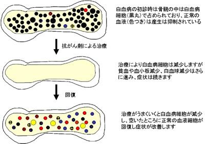 化学療法 図5